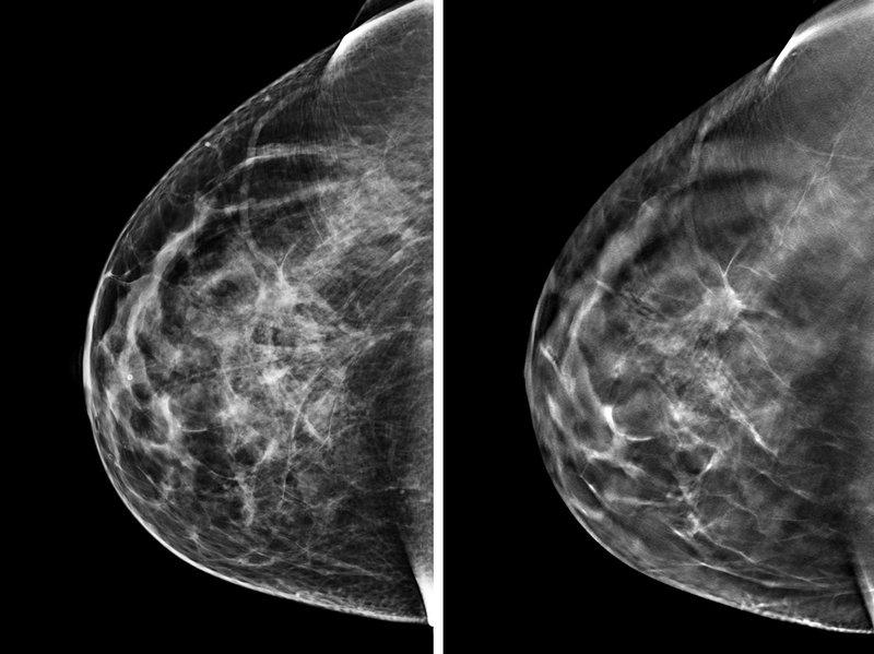 Mamografía en Monterrey